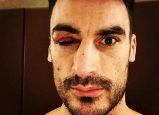 Фото: Капитан сборной Казахстана показал последствия травмы, которую он получил в игре против Беларуси